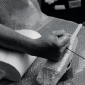 arad-arm-casting